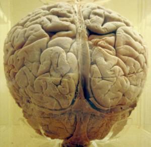BrainMorguefileResized